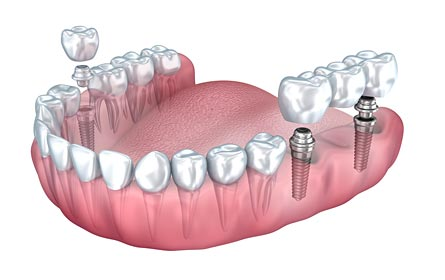 illustration of dental implant and implant bridge